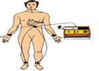 12-Lead ECG Placement