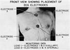 Electrode Placement for Electrocardiograph